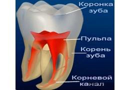Лечение хронического периодонтита многокорневого зуба (с пломбой)