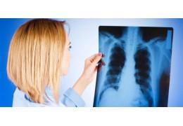 В Беларуси туберкулез впервые выявлен у 21 ребенка