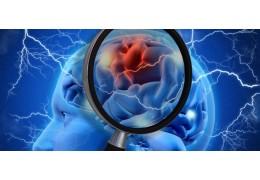 В РФ зарегистрирован первый в мире тест для диагностики хронической ишемии мозга
